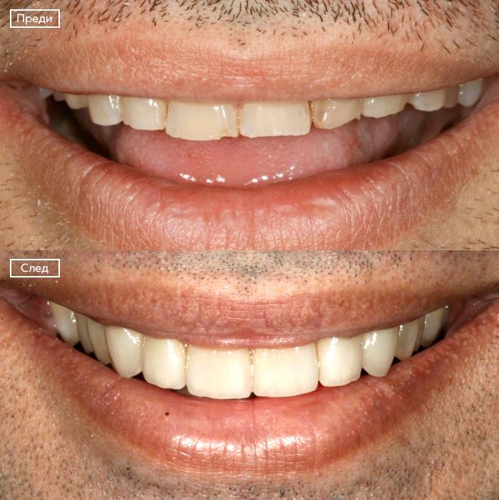 Износени зъби
