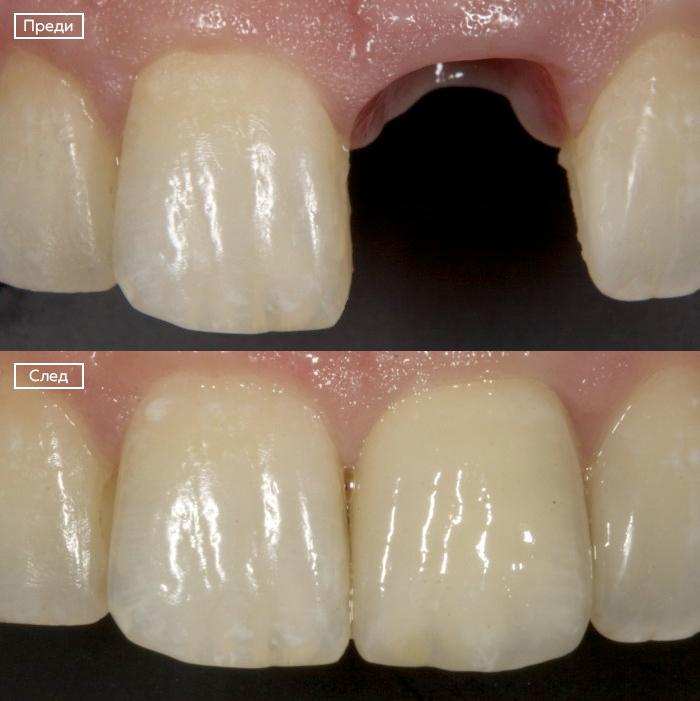 Имплант на единичен зъб